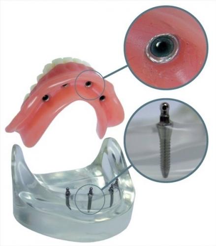 Innovatív fogászati eljárás érdemelte ki az Érték és Minőség Nagydíjat